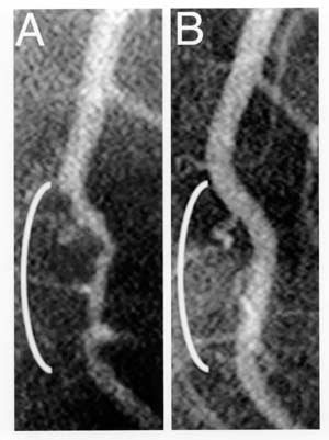 Figure 1 -- Coronary angiograms of the distal left anterior descending artery before (left) and after (right) 32 months of a plant-based diet without cholesterol-lowering medication, showing profound improvement.