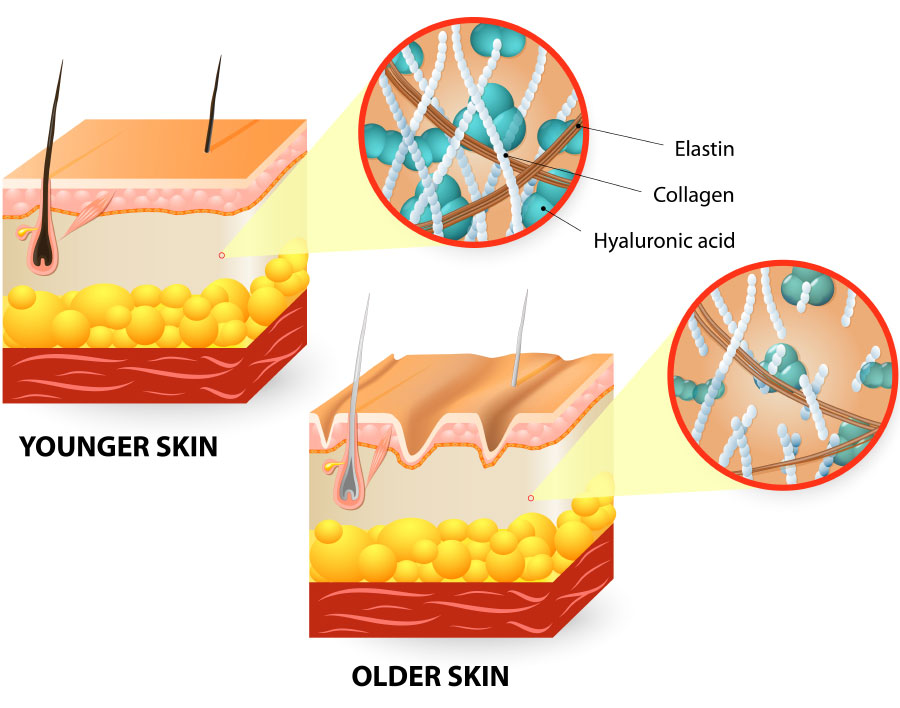 Notice the breakdown in collagen proteins in the older skin with apparent formation of wrinkles.