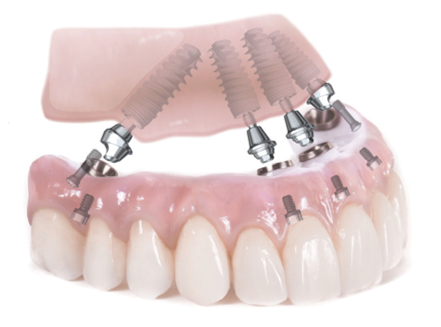 Teeth in a day hybrid dentures all-on-4 Lexington SC Columbia SC Hartsville SC Florence SC