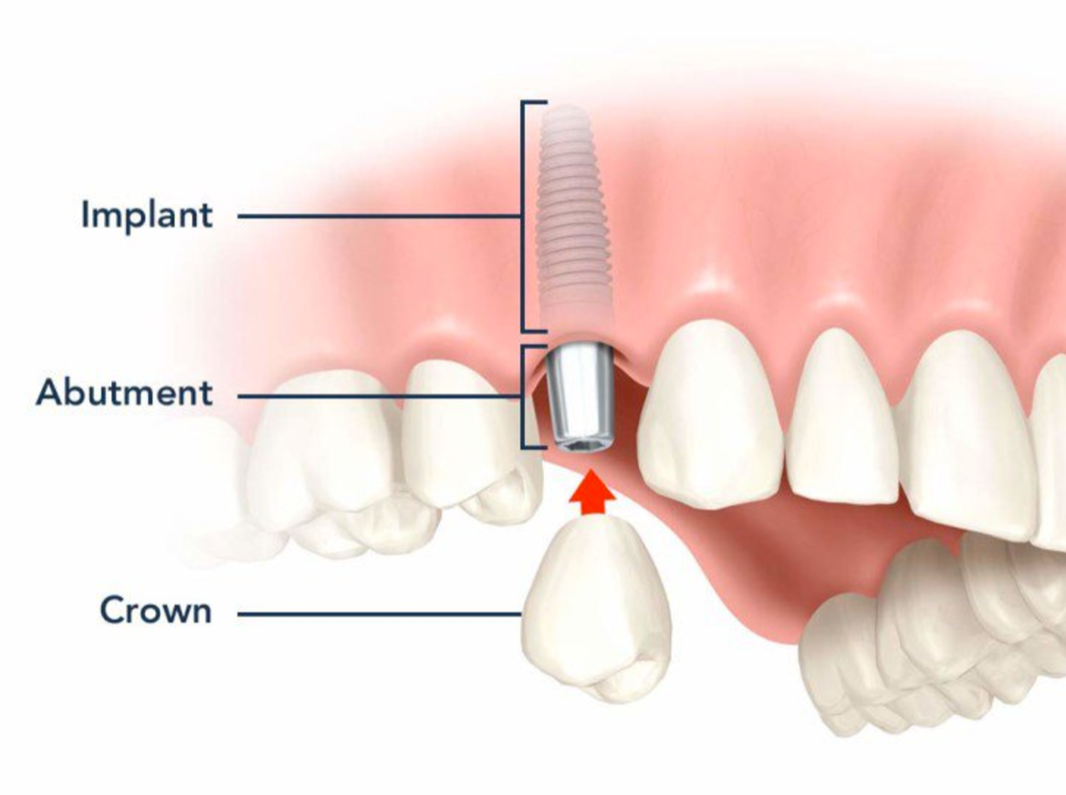Dental Implants Columbia SC Lexington SC