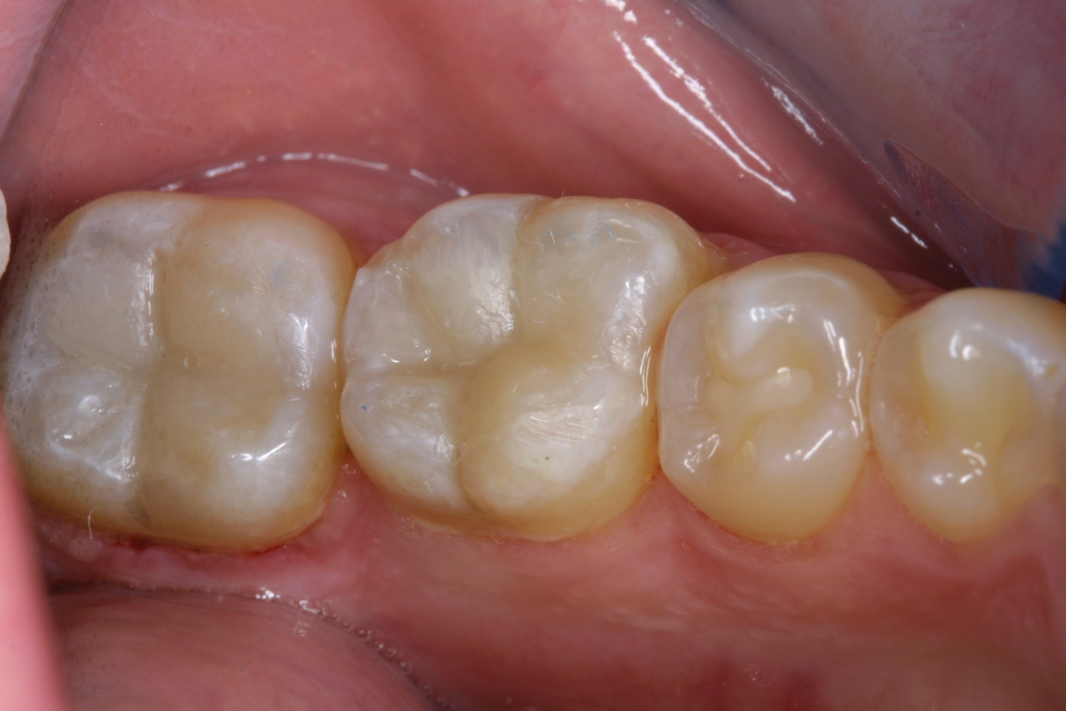 Tooth-colored fillings in Lexington SC Non-metal dental fillings Columbia SC