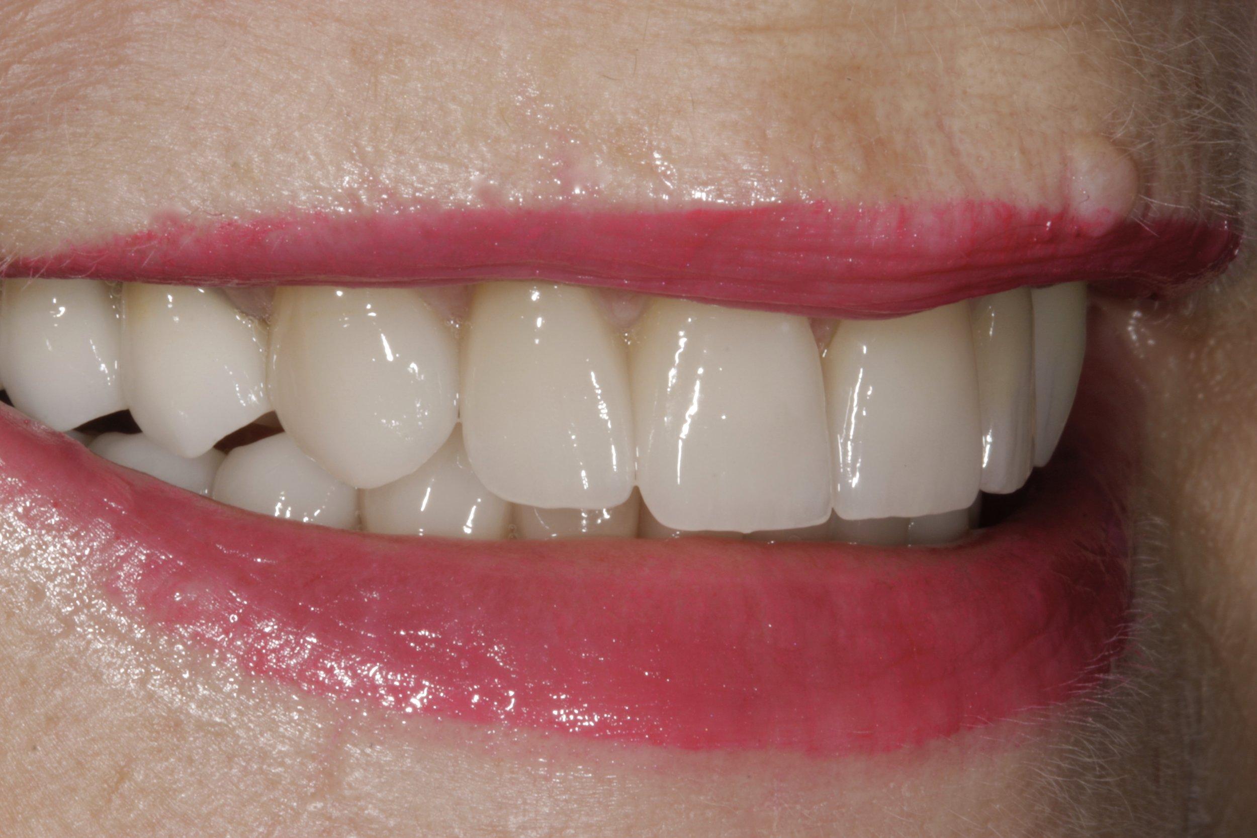 Dental Crowns Columbia SC Lexington SC