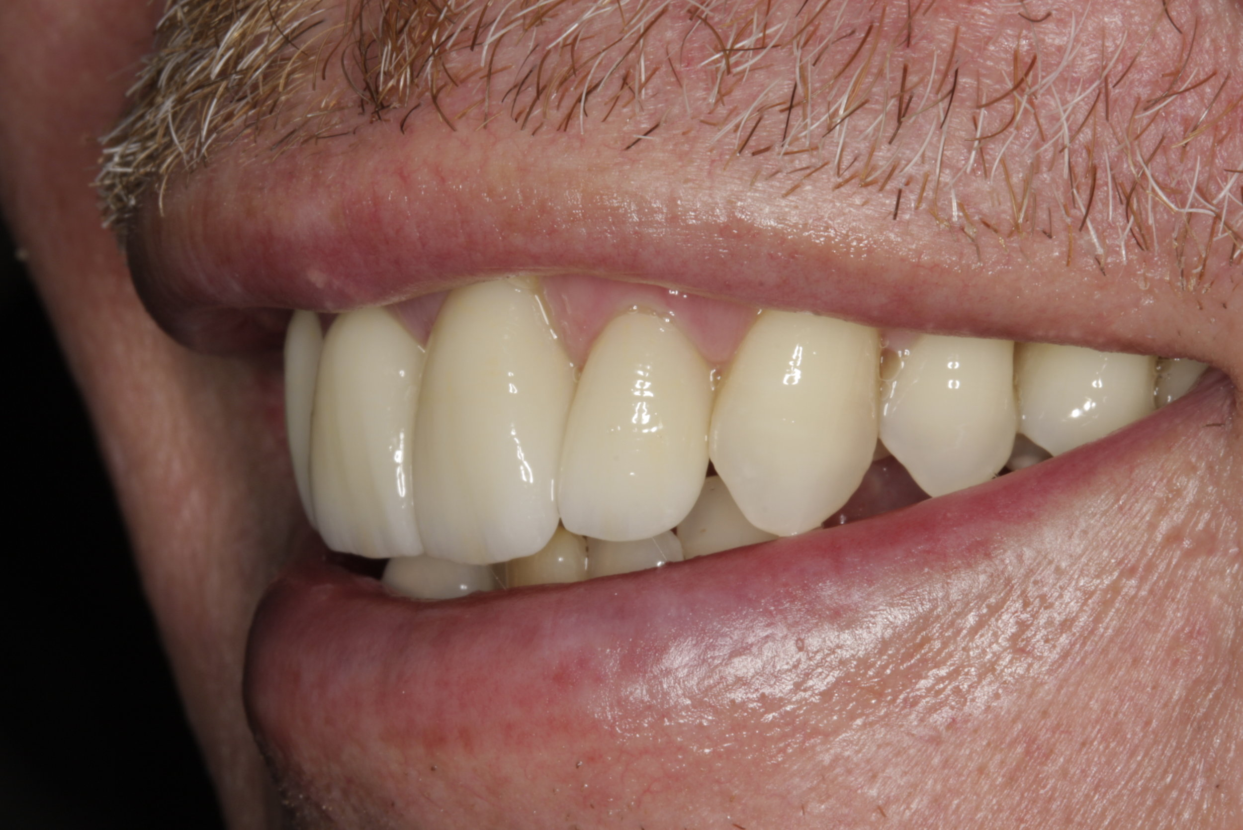 Dental crowns Columbia SC