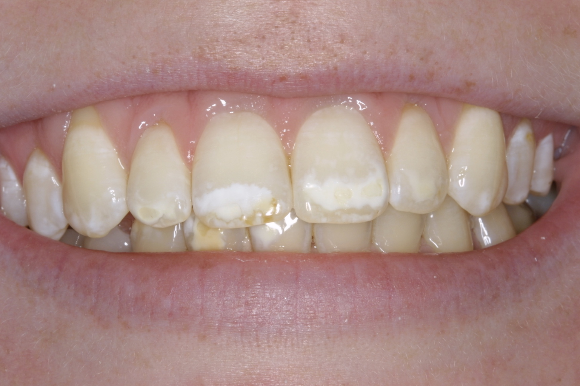 Before whitening - white spots appear prominent