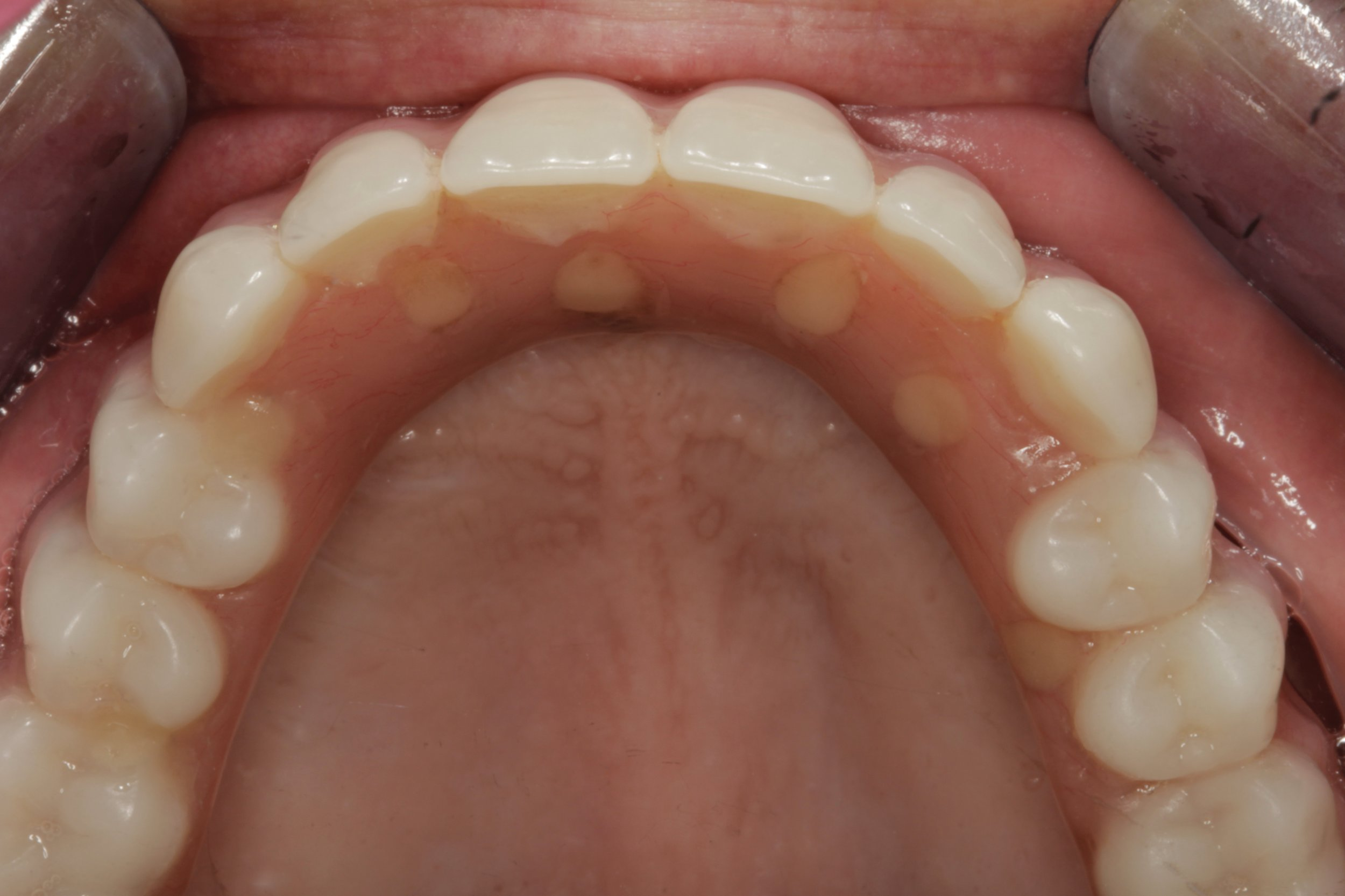 Top hybrid denture - the roof of the mouth is exposed lending to more comfort and better tasting of food