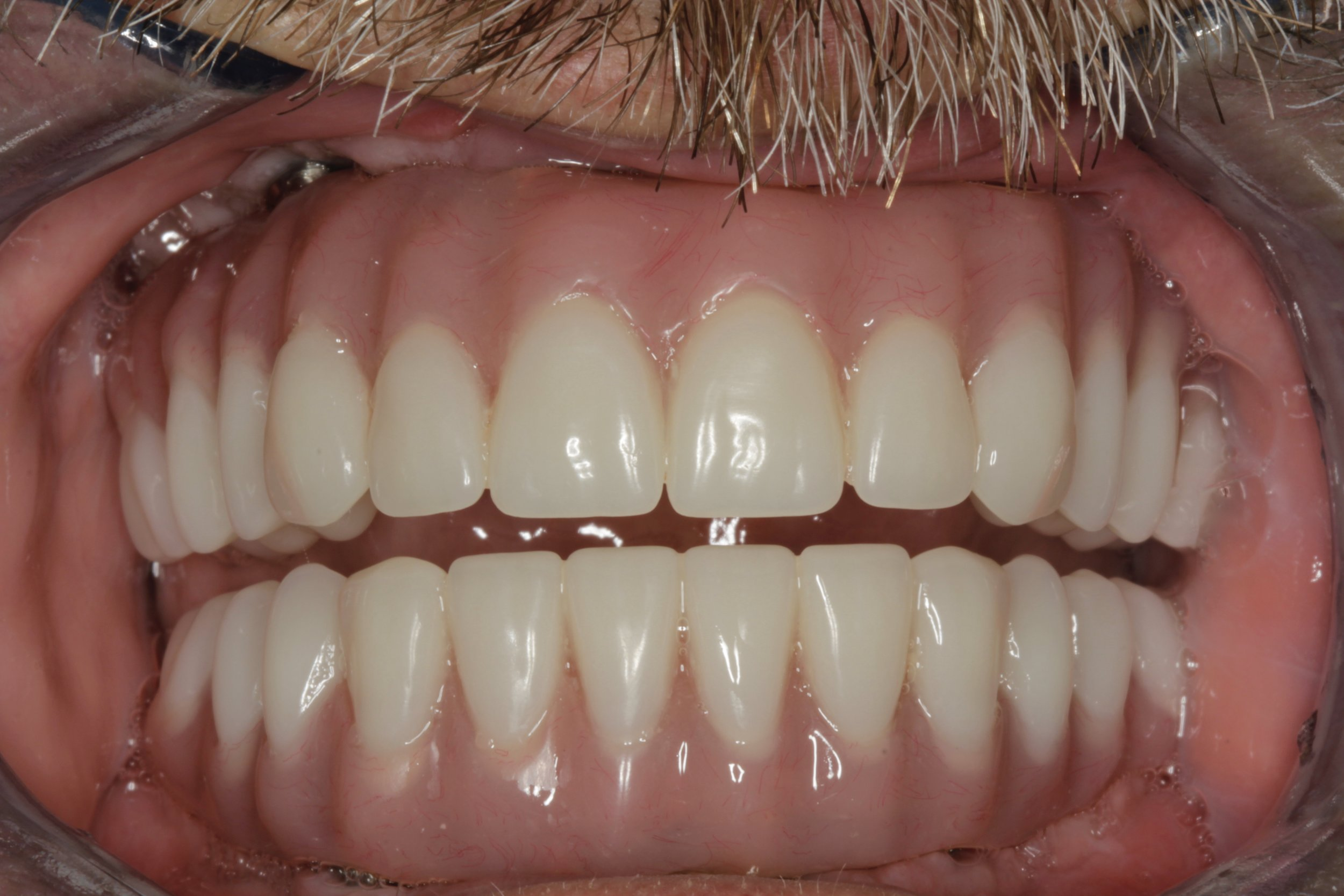 Top and bottom hybrid dentures - fixed permanently in place