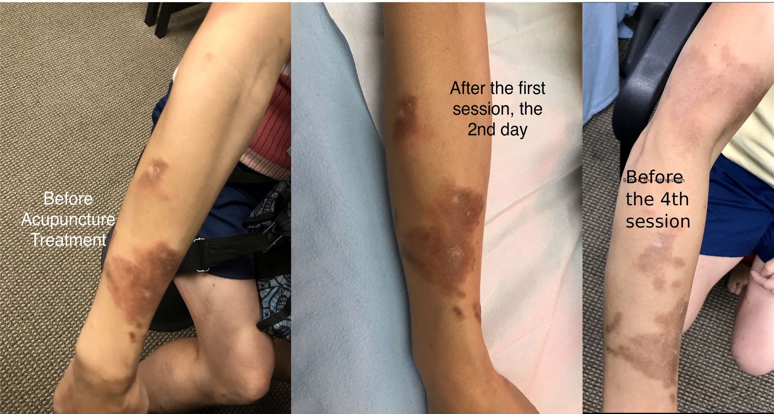 ReLife Acuuncture- Eczema- reddish and itchy