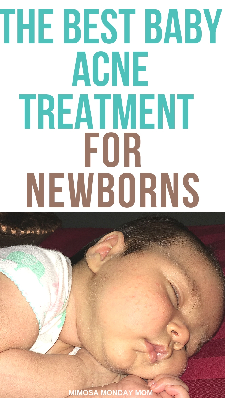 CLICK HERE - To read more on our struggle with treating baby acne!
