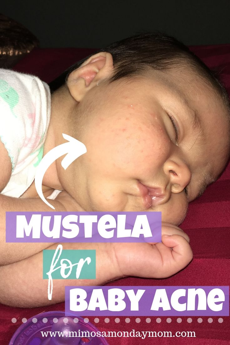 mustela for baby acne