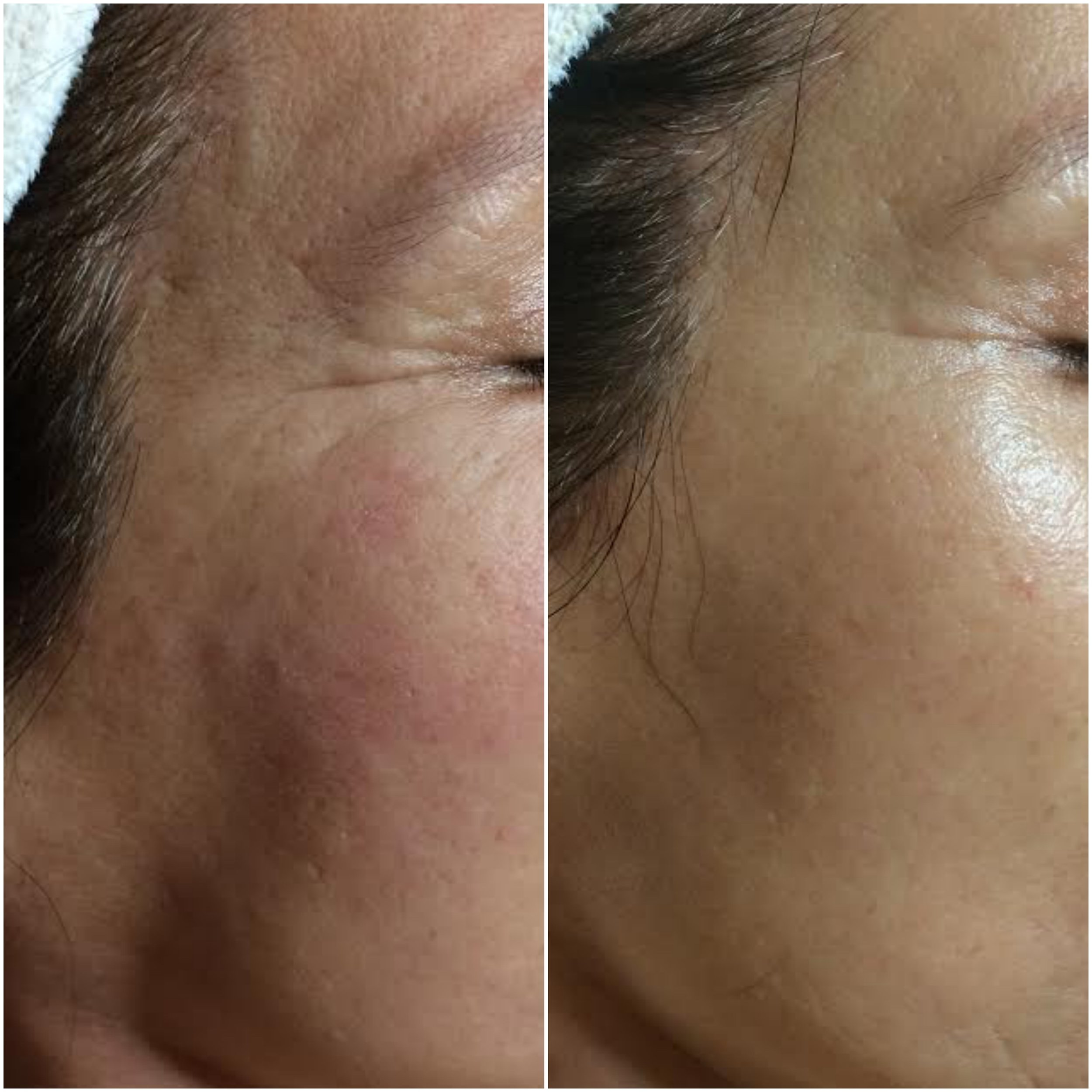 Increased collagen fills fine lines and optimizes tone and texture, using NŪR hi-tech facial series