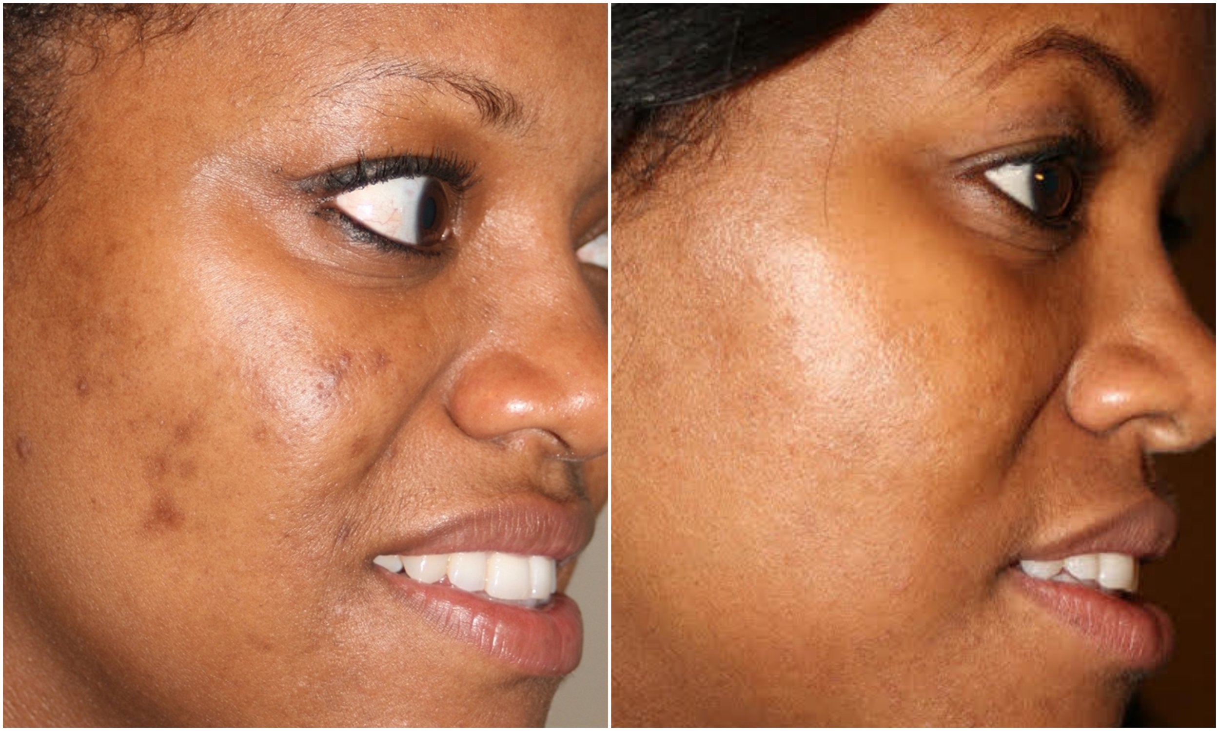 Blemishes cleared, tone/texture cleared using Perfect Derma Peel (Intense Peel)