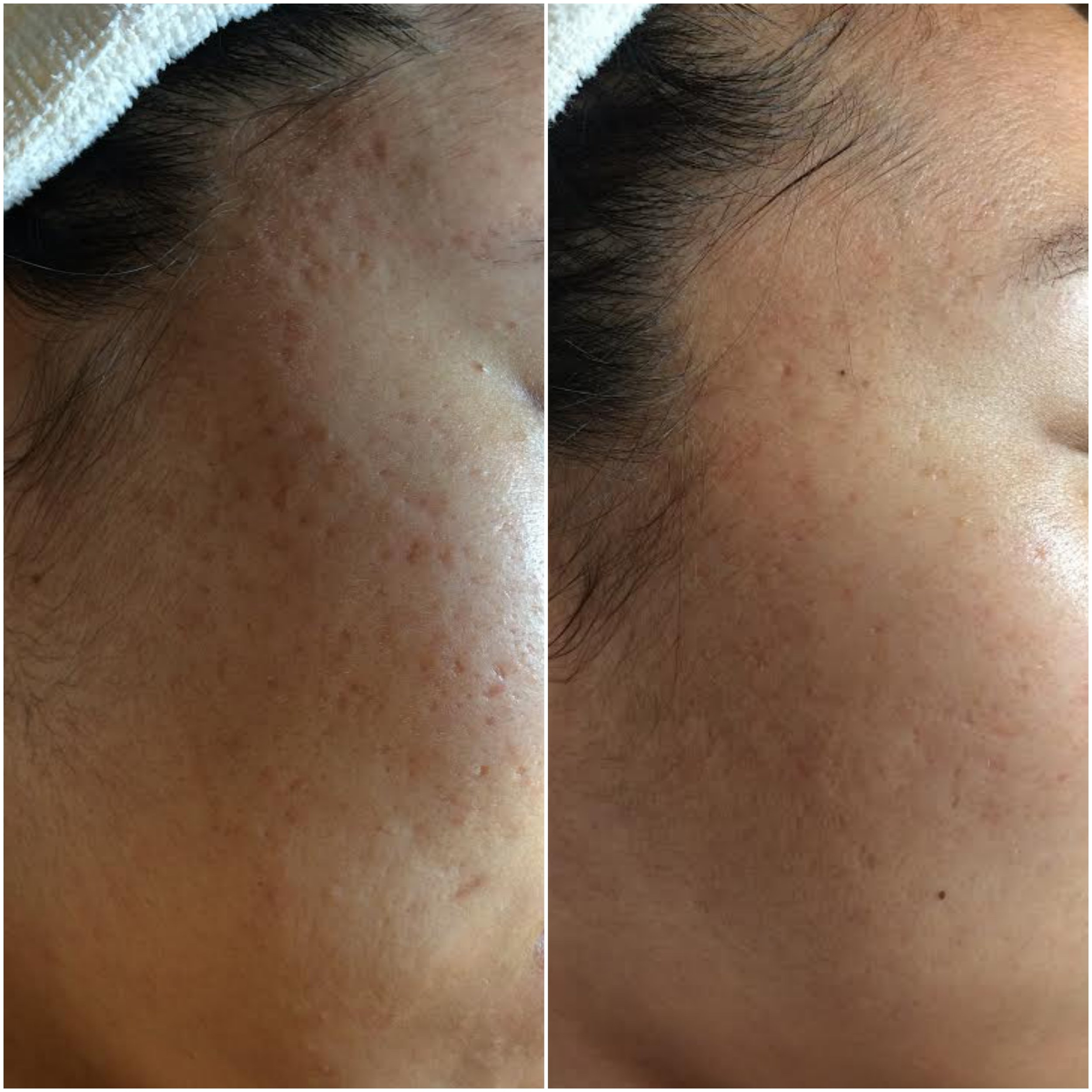Acne pit scarring filled using human stem cell microneedling series