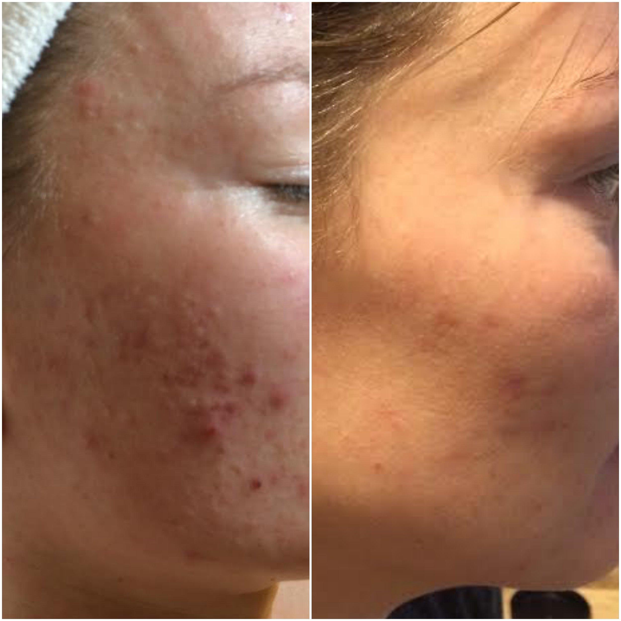 Cystic acne cleared using NŪR hi-tech facial series