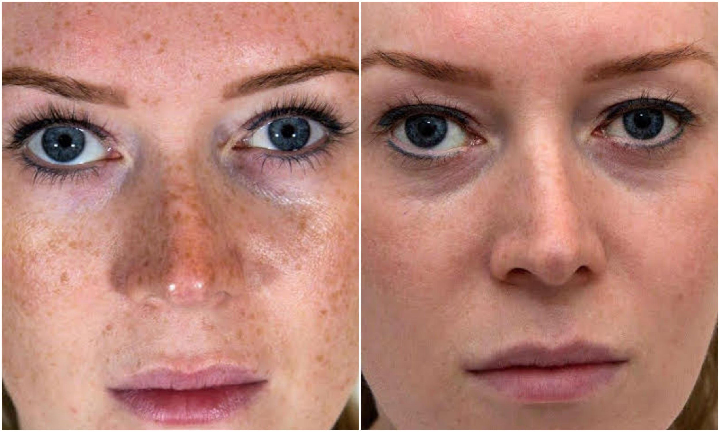 Freckles removed, even skin tone achieved using Perfect Derma Peel (Intense Peel)