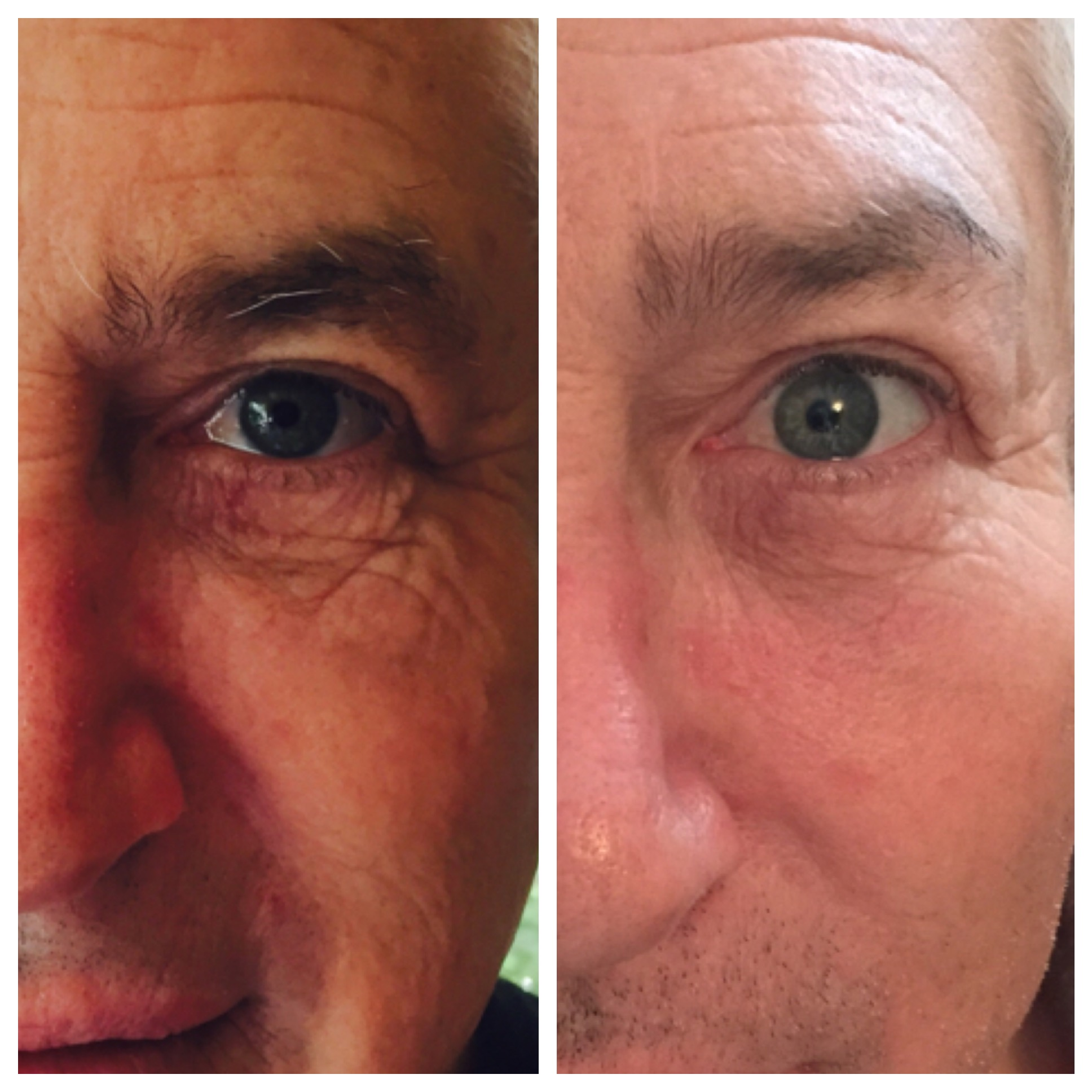 Tone/Texture improved and fine lines filled using Perfect Derma Peel (Intense Peel)