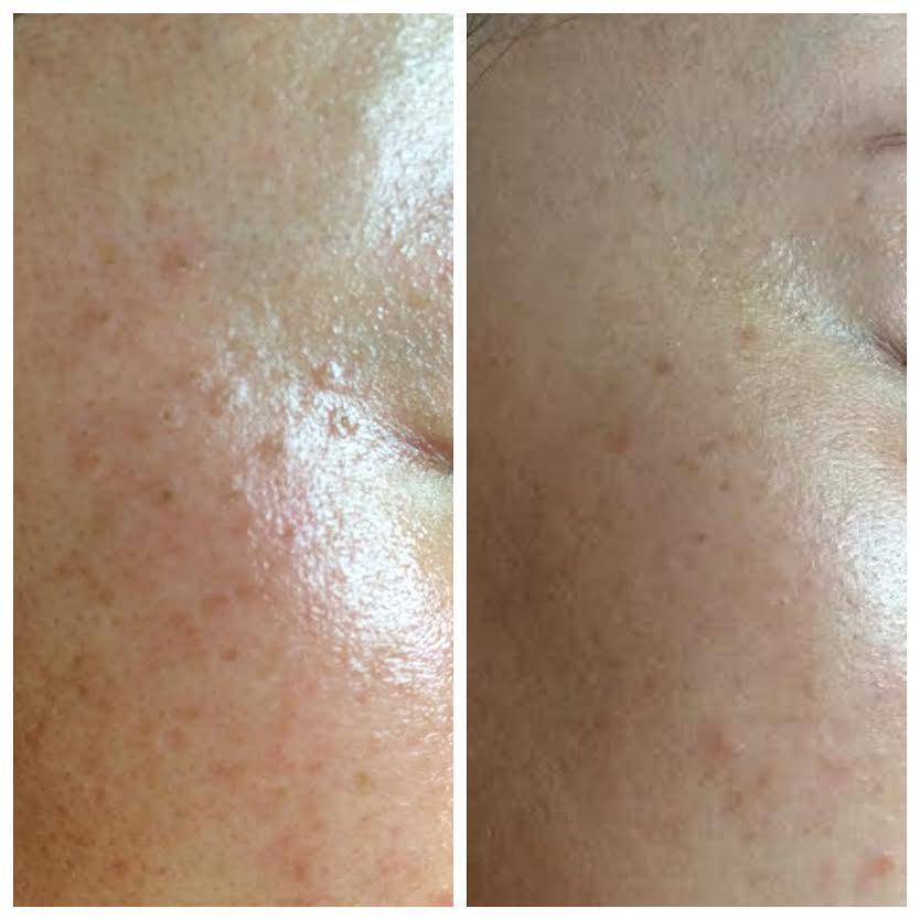 Moles removed using hyfrecation and NŪR hi-tech facial series