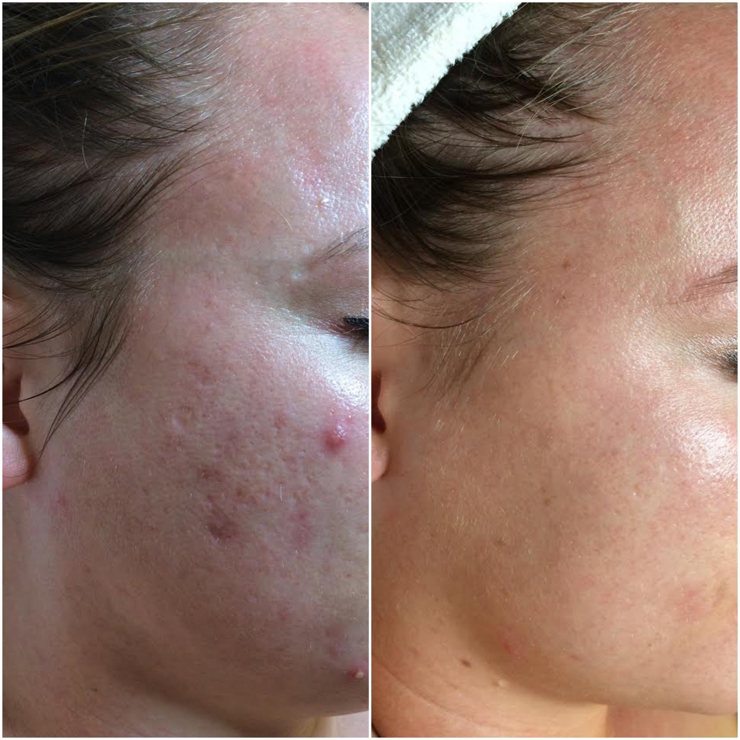 Cystic acne cleared, using NŪR hi-tech facial series