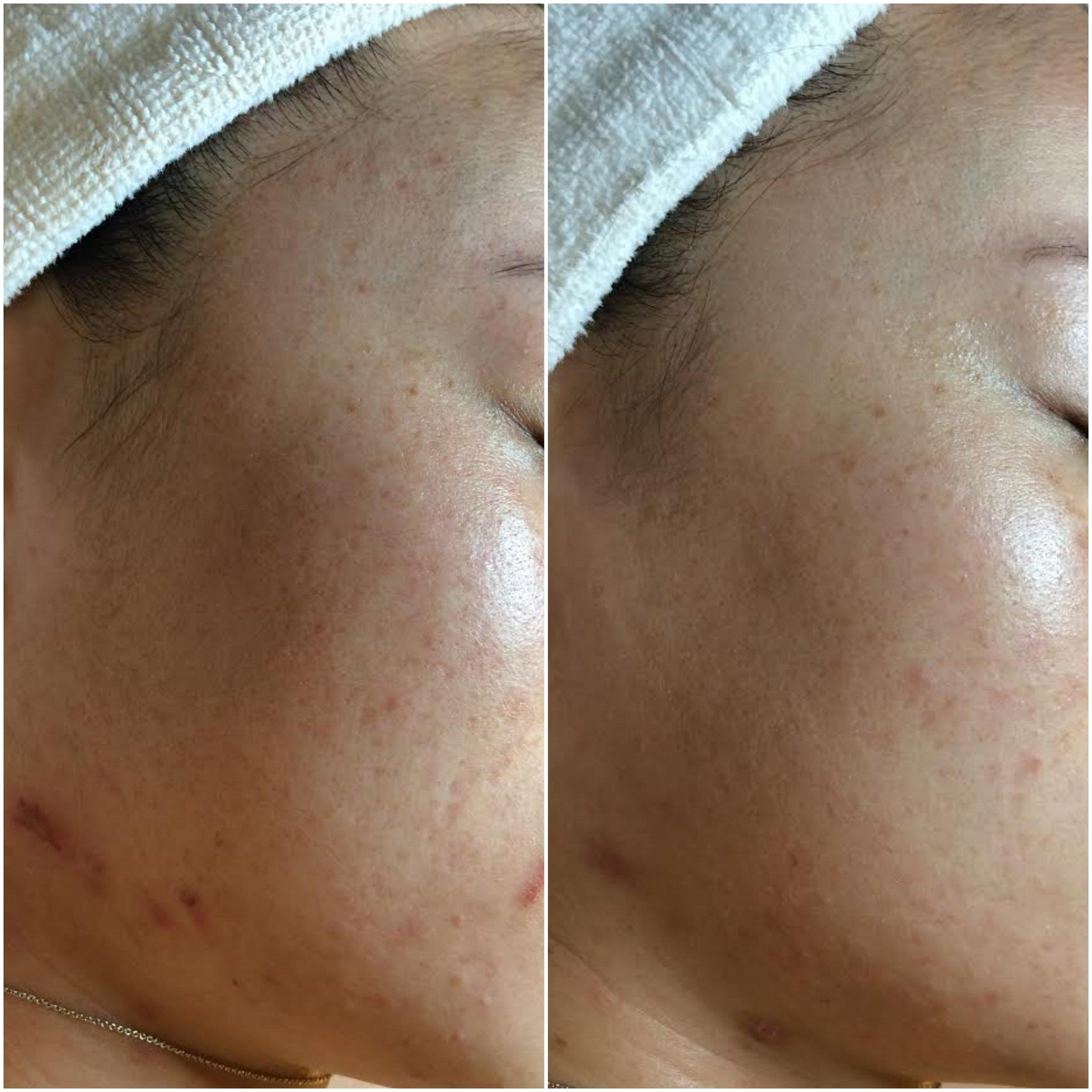 Texture and tone optimized using NŪR hi-tech facial series