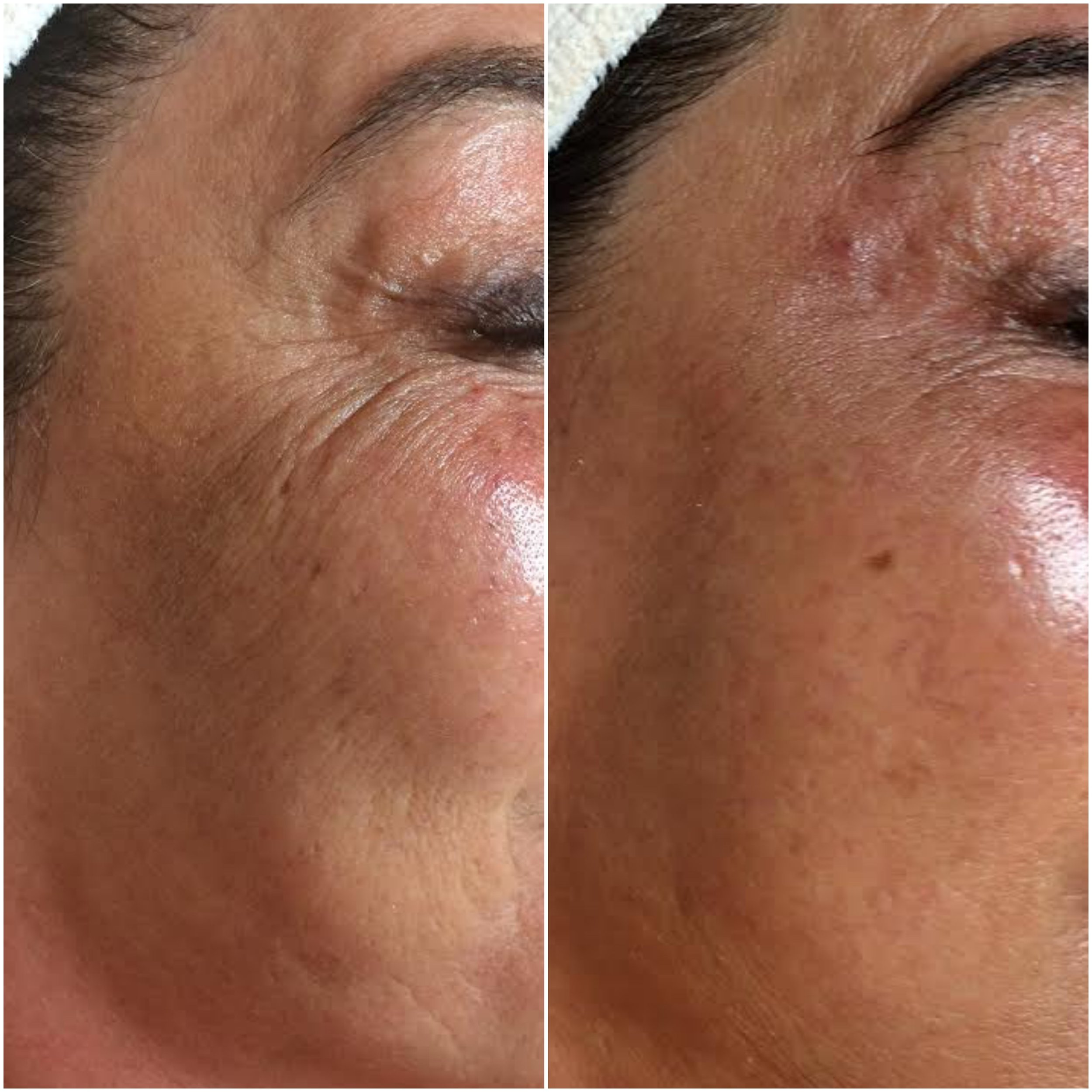 Collagen increased, fine lines filled and tone/texture optimized using NŪR hi-tech facial series