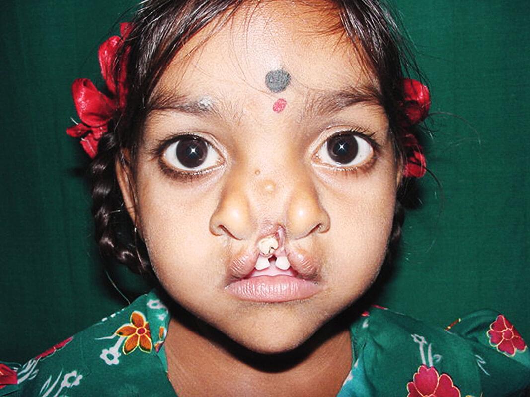 Cleft-Kinder-Hilfe Schweiz Padma_002.jpg