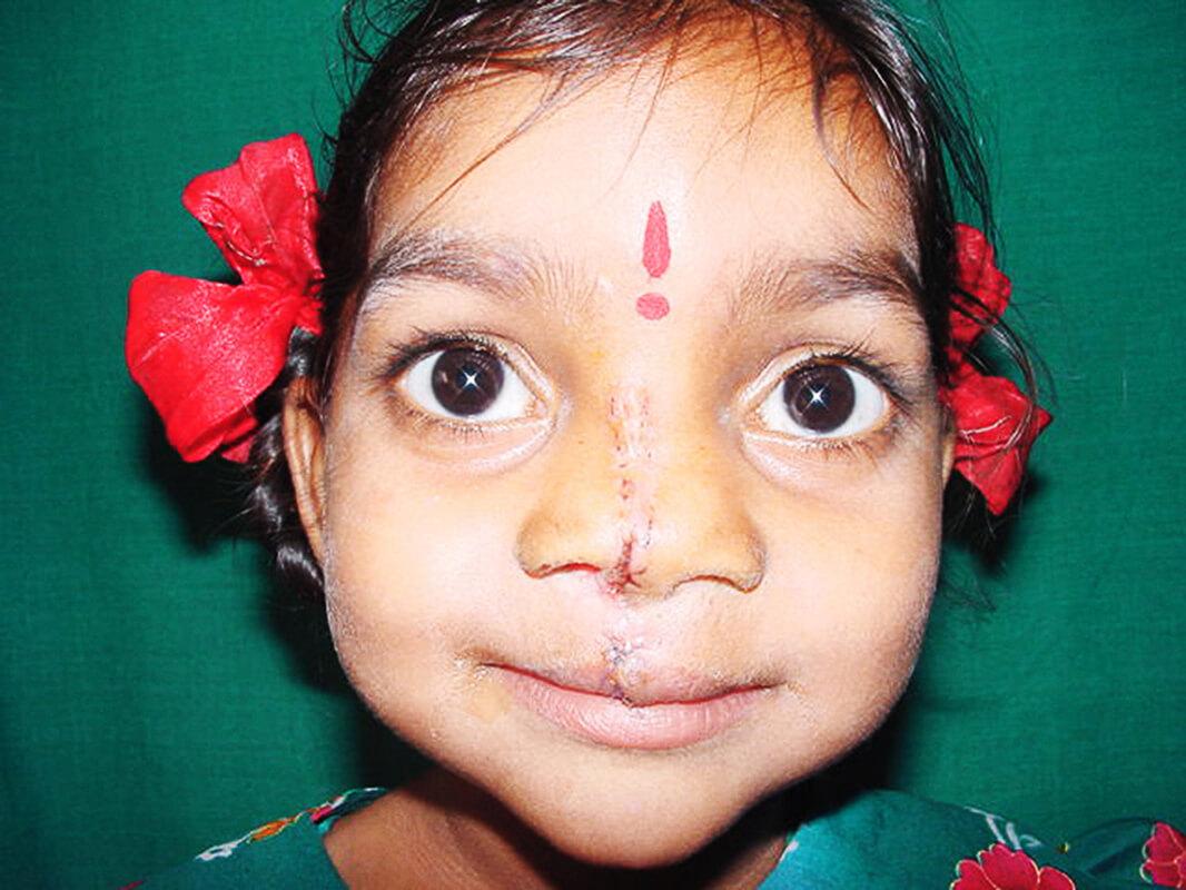 Cleft-Kinder-Hilfe Schweiz Padma_003.jpg
