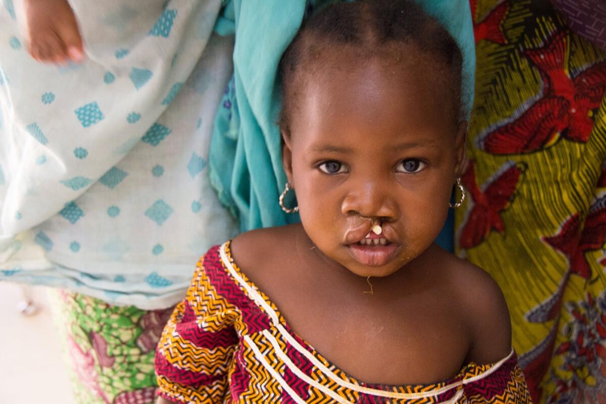 Cleft-Kinder-Hilfe Schweiz np-2185.jpg