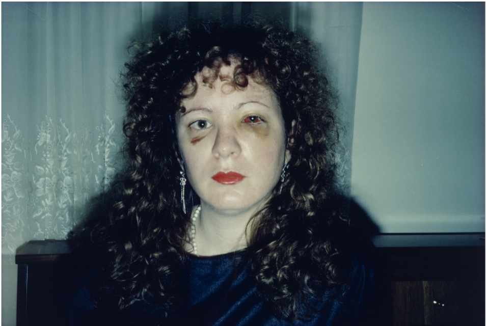 Nan One Month After Being Battered , Nan Goldin 1984