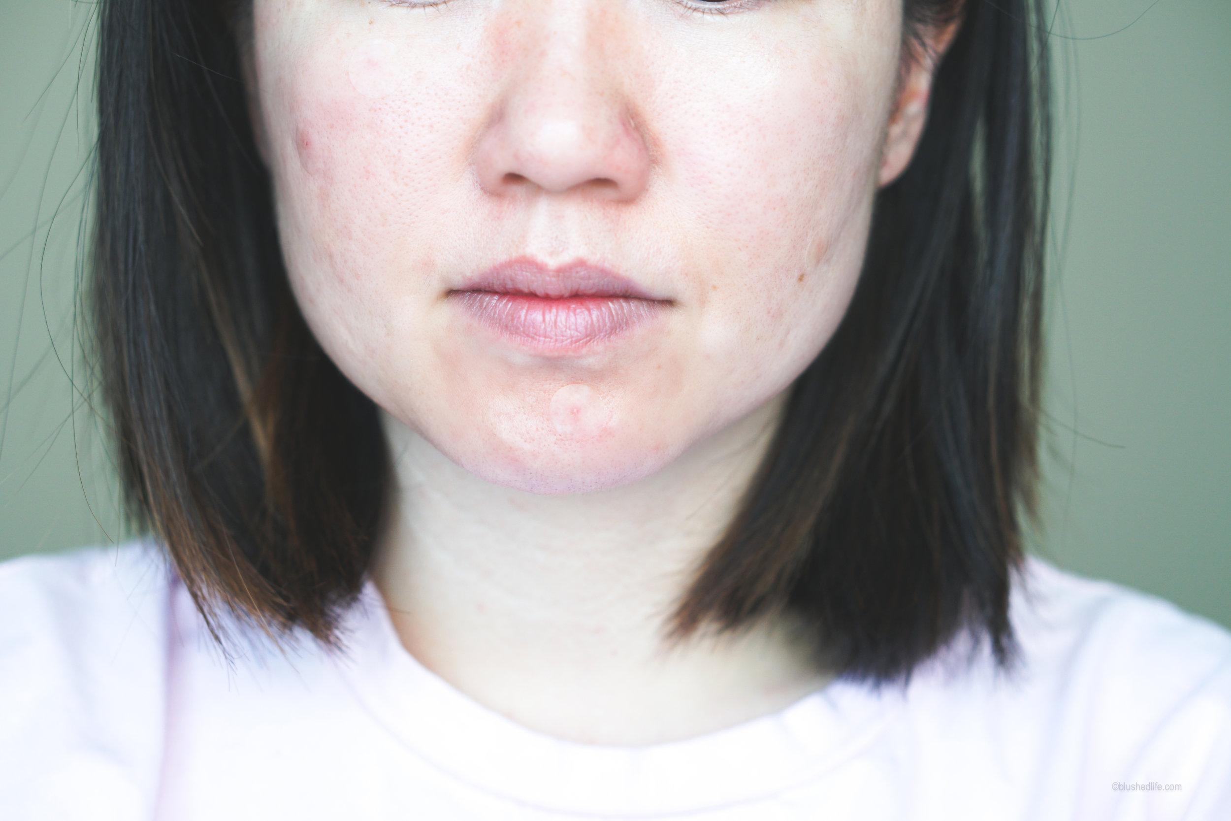 Best Pimple Patches Review Comparison_DSC07277-2.jpg