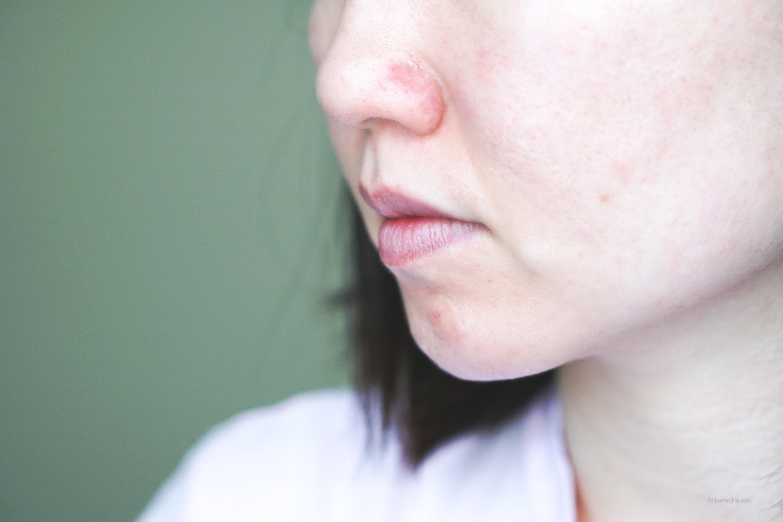 Best Pimple Patches Review Comparison_DSC07278-2.jpg