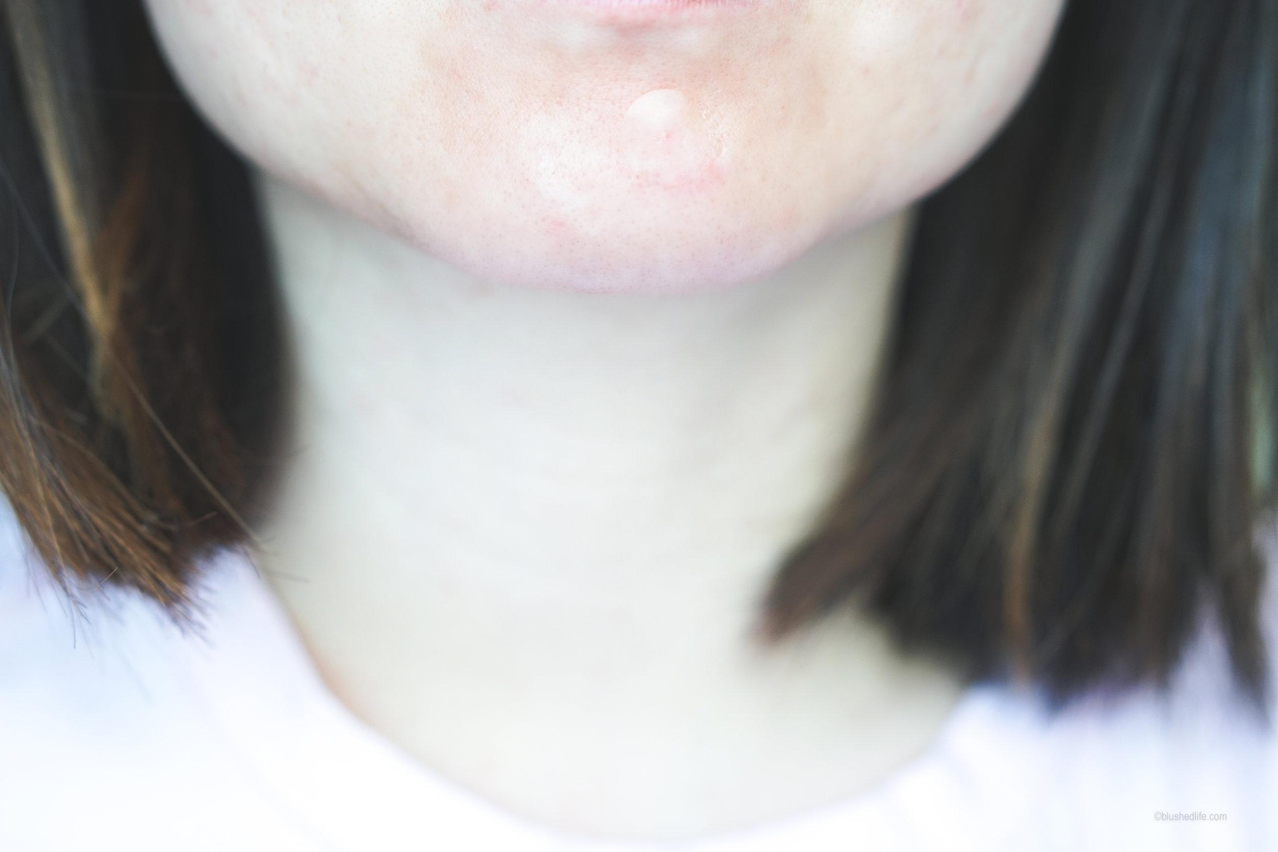 Best Pimple Patches Review Comparison_DSC07280-2.jpg