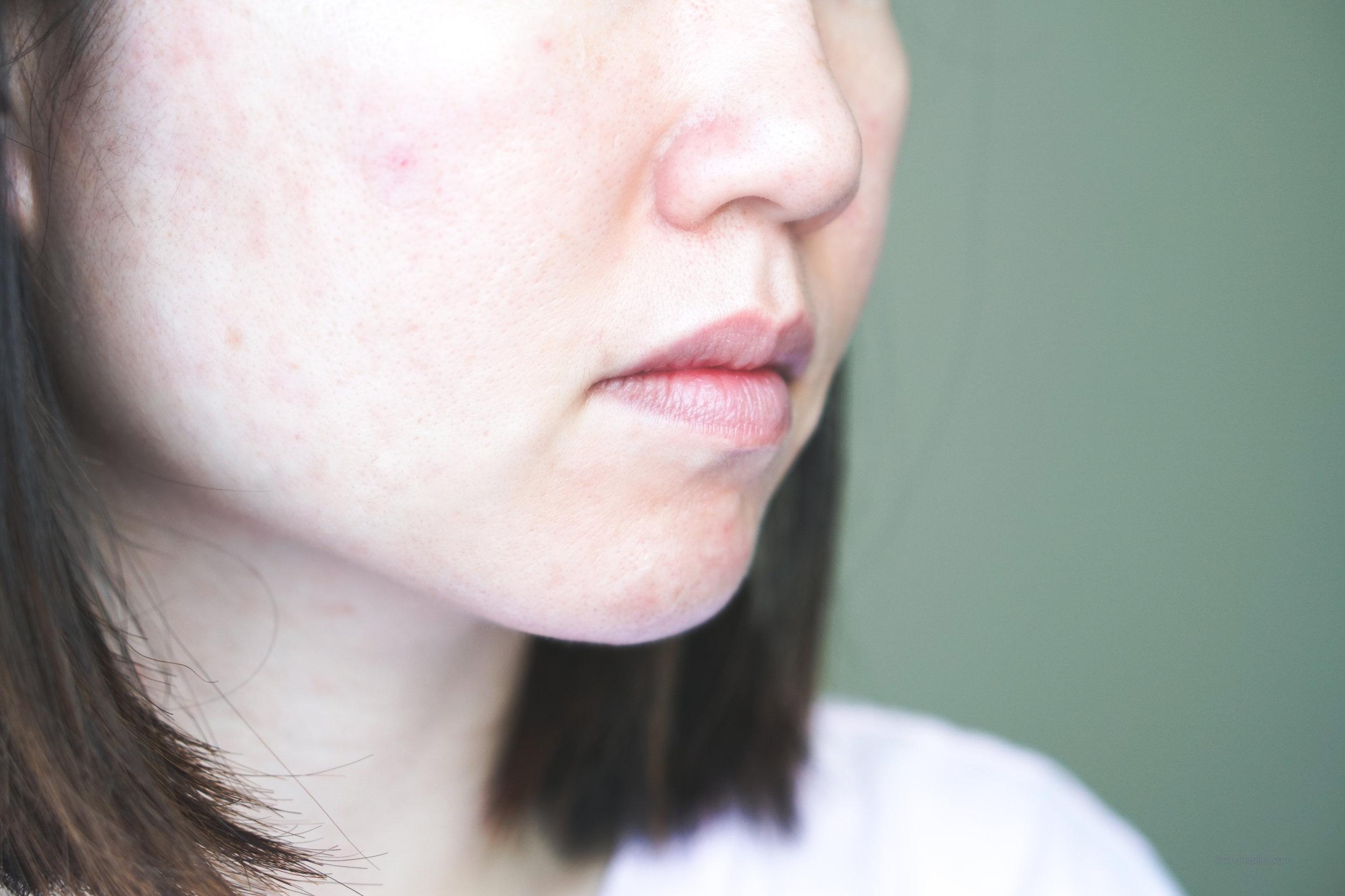 Best Pimple Patches Review Comparison_DSC07279-2.jpg