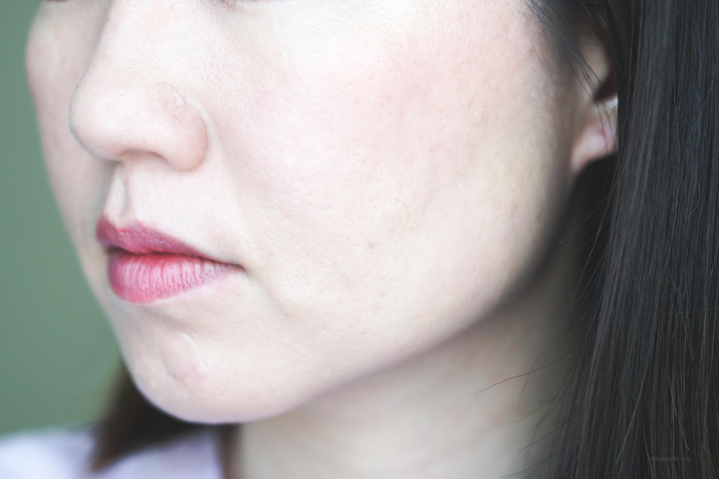 Best Pimple Patches Review Comparison_DSC07283-2.jpg
