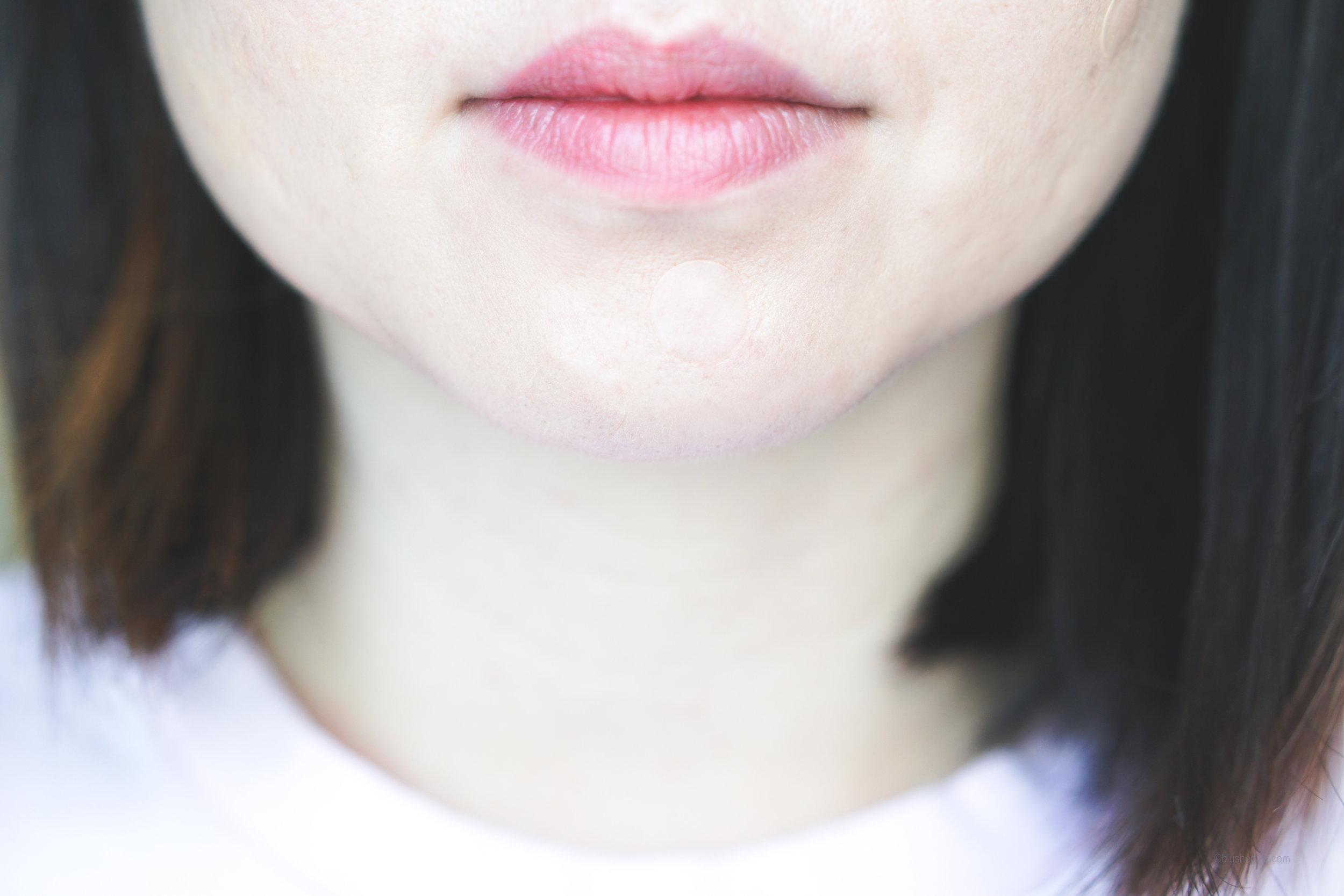 Best Pimple Patches Review Comparison_DSC07285-2.jpg