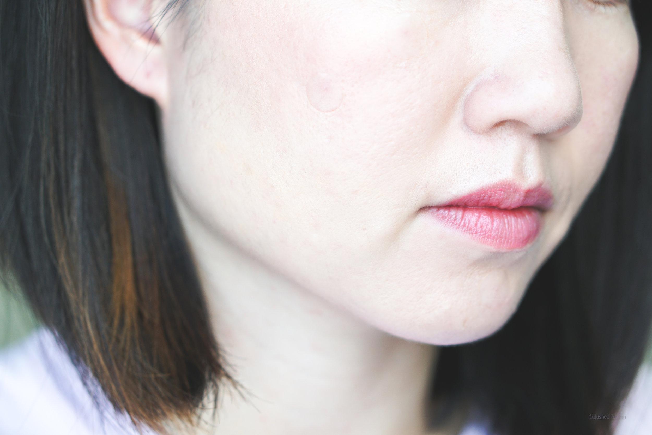 Best Pimple Patches Review Comparison_DSC07284-2.jpg