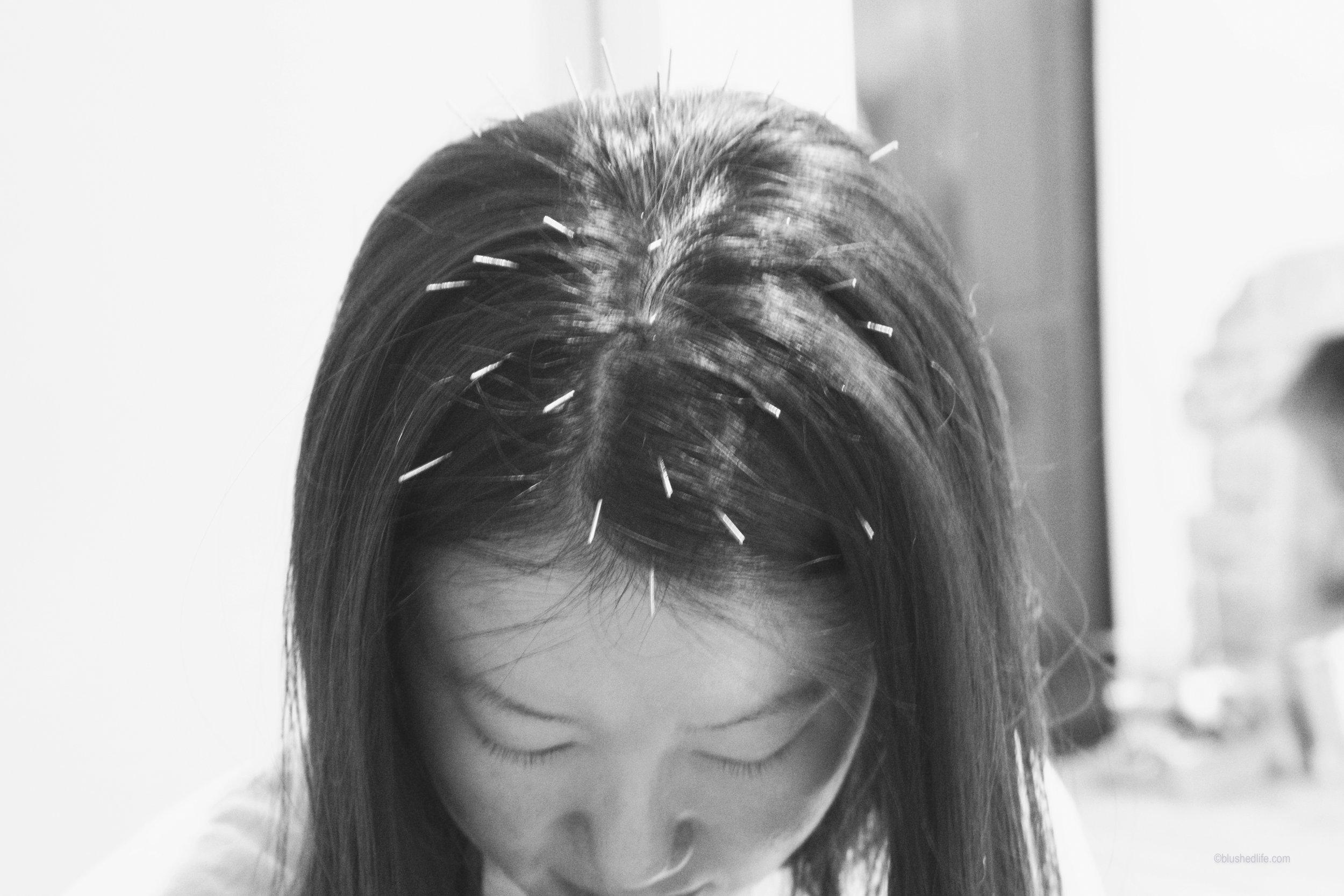 facial acupuncture acne pores_DSC07479-2.jpg