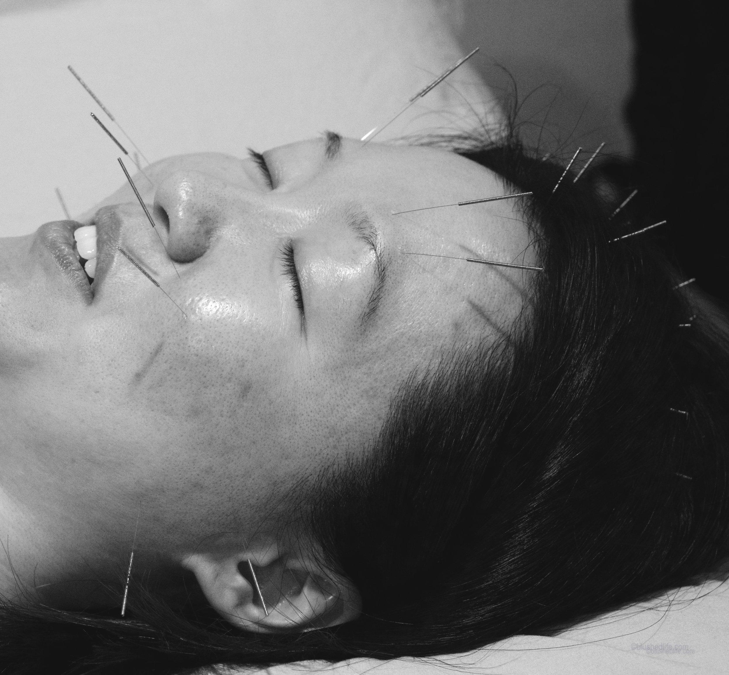 facial acupuncture acne pores_DSC07485-2-2.jpg