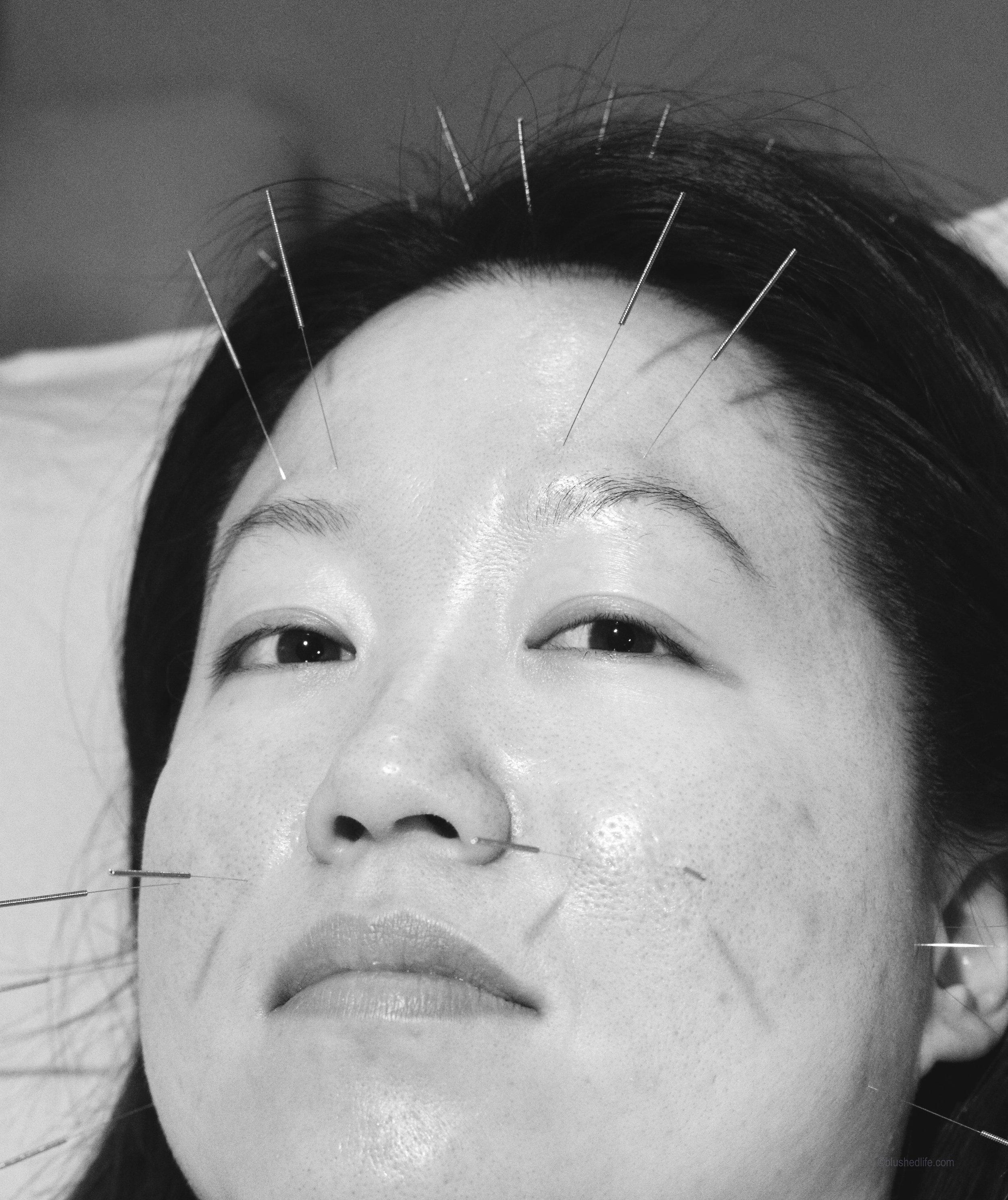 facial acupuncture acne pores_DSC07486-2-2.jpg