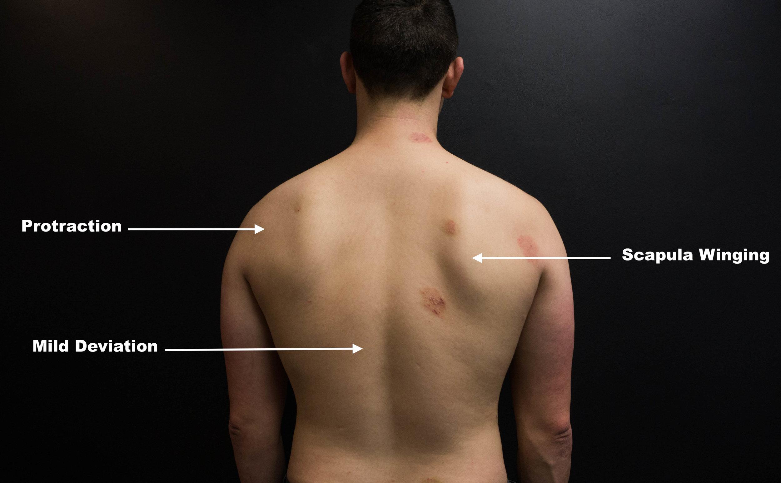 Winged Scapula and Shoulder Pain [Case Study] — ONI   Wellington Personal  Training Studio