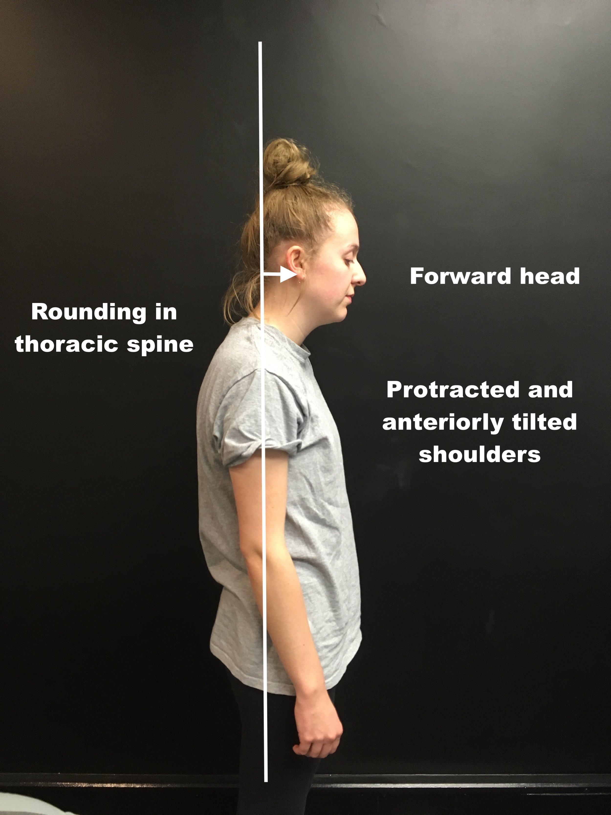 Charlotte Posture Initial.JPG