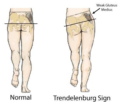 Trendelenburg-Gait.jpg