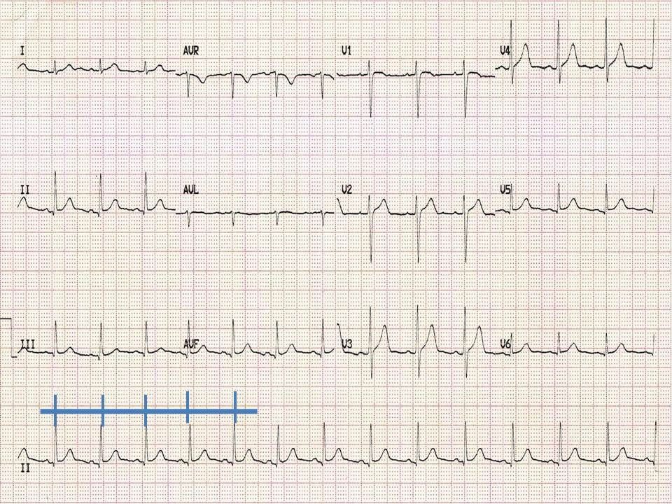 By looking at successive R-R distances we can see that this ECG shows a regular rhythm.