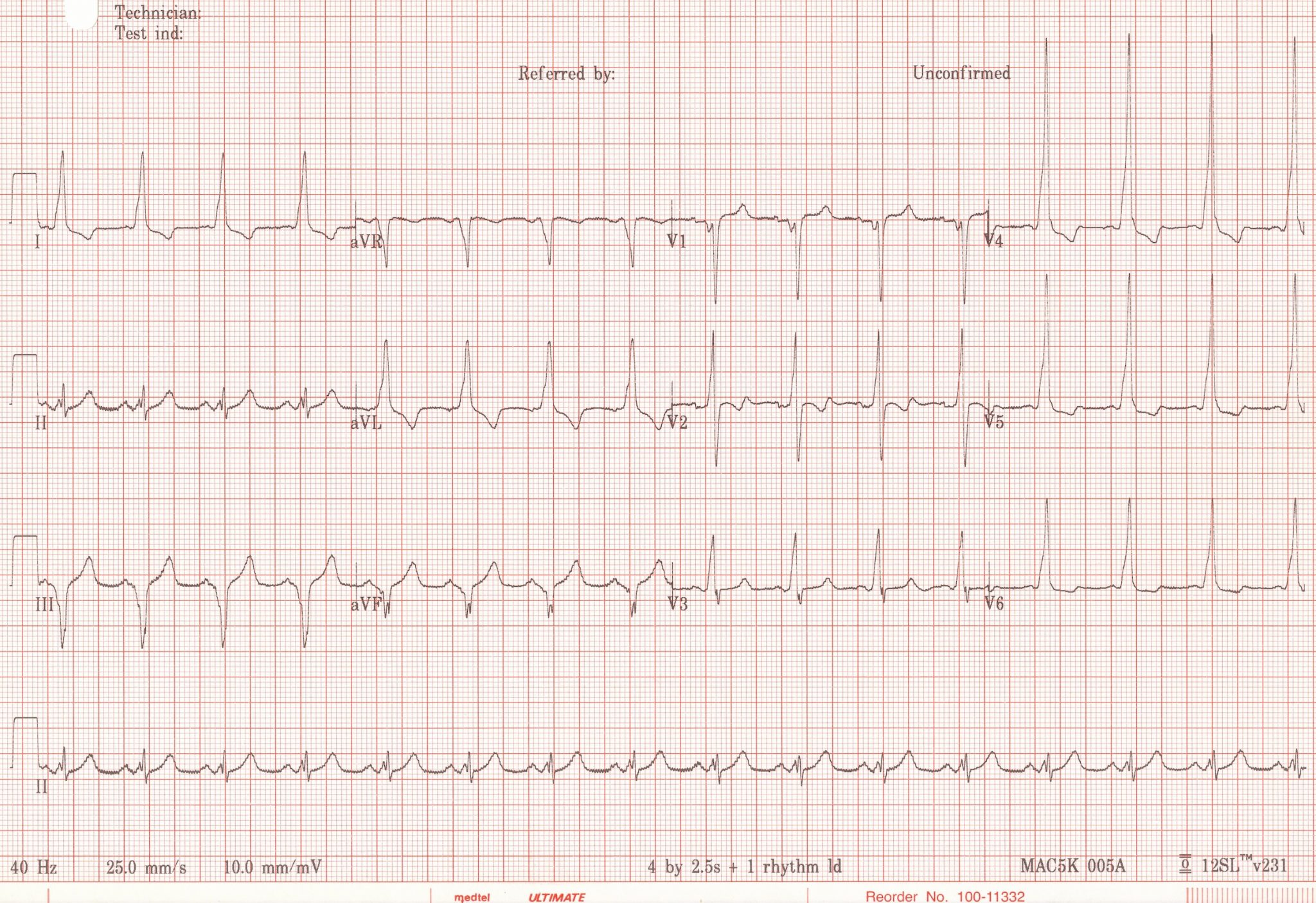Type B Wolff-Parkinson-White, the negative delta wave is in III and aVF