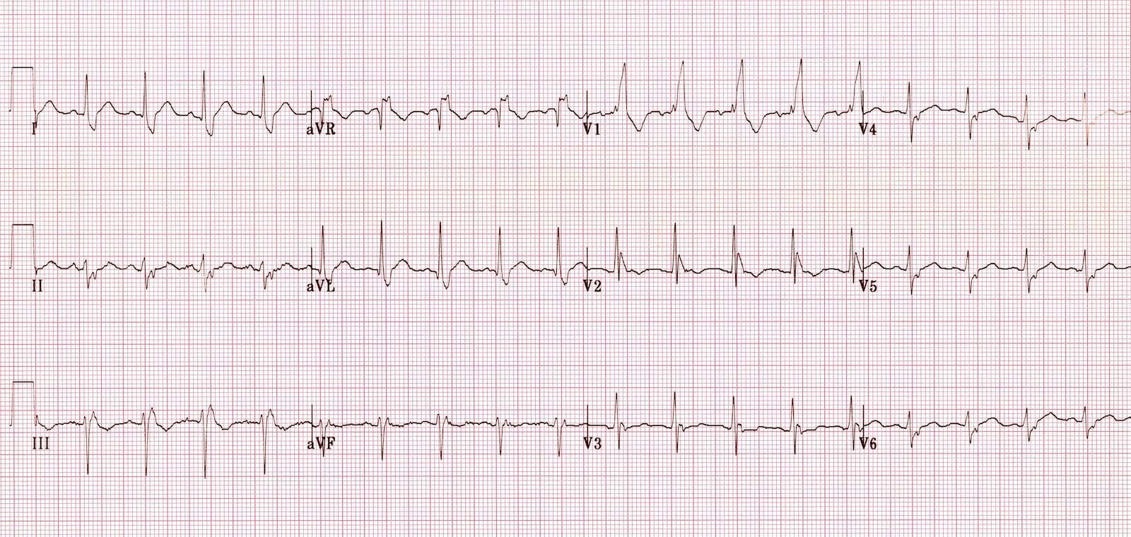 Bifascicular block showing RBBB and LAFB
