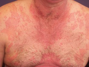 urticaria2.jpg