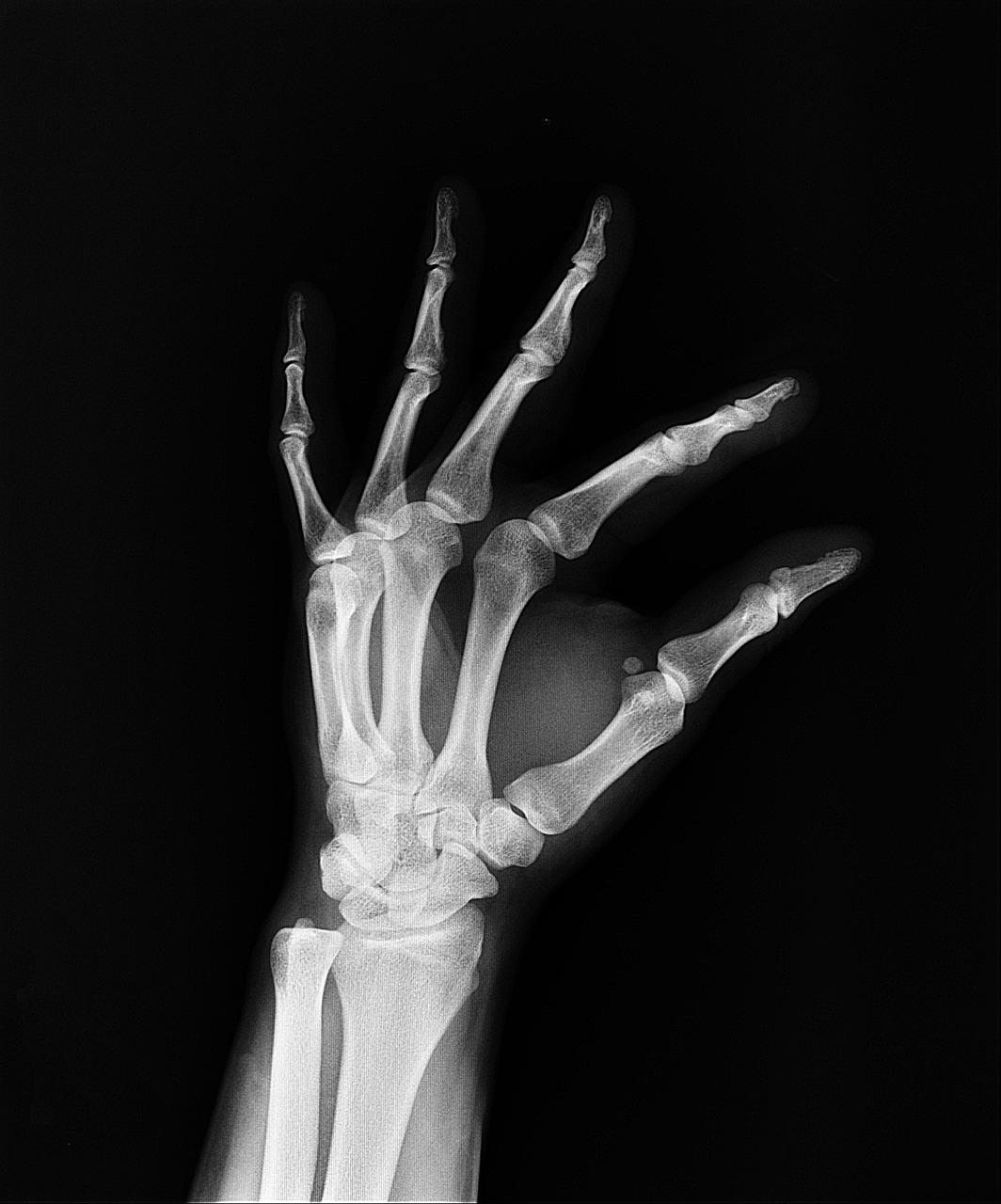 x-ray-1704854_1280.jpg