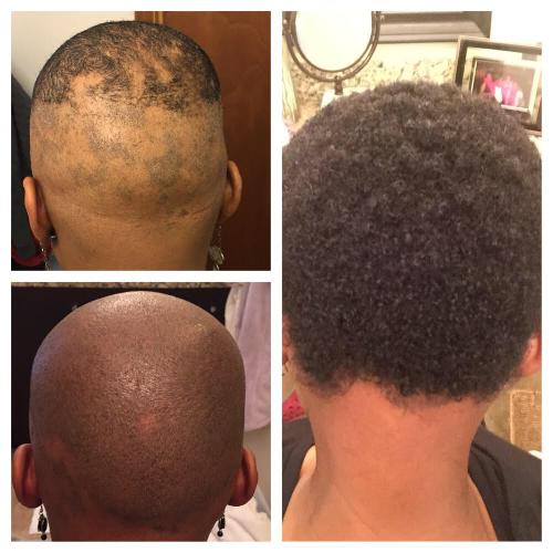 Top Left: April 2015.  Bottom Left: October 2015.   Right: February 2016.