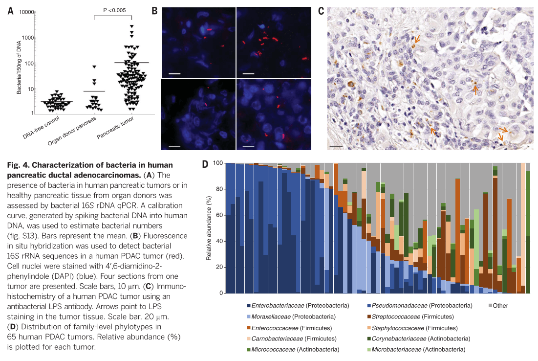 Fig. 4. Characterization of bacteria in human pancreatic ductal adenocarcinomas.