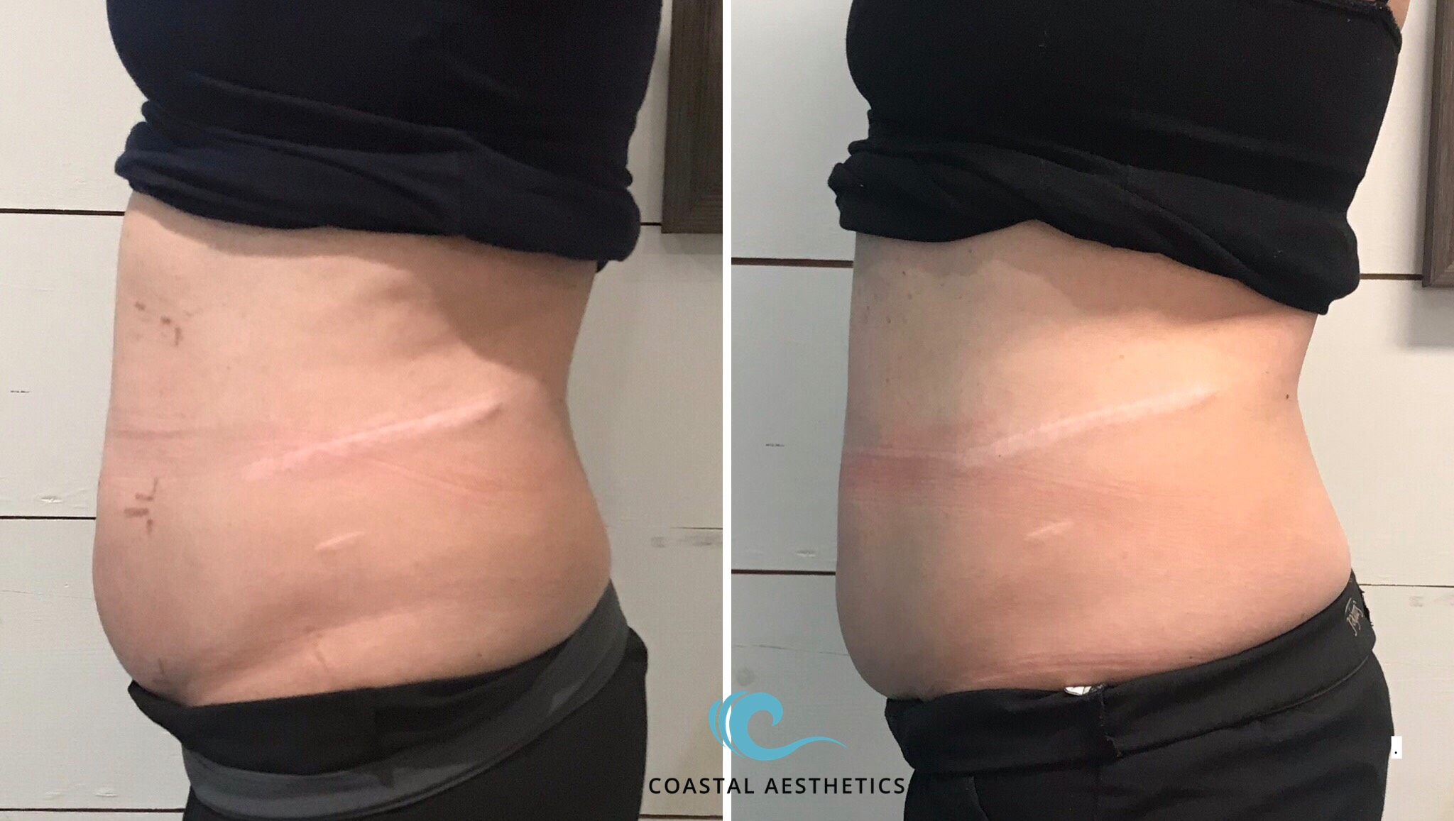 12 weeks post 1 treatment truSculpt iD
