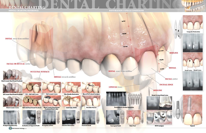 DentalChartingPROOF_032013_3-3.jpg