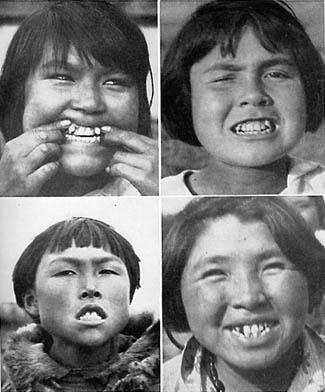 Изменения зубных арок у детей эскимосов